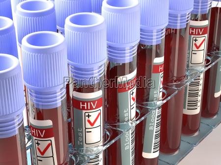 hiv positivo