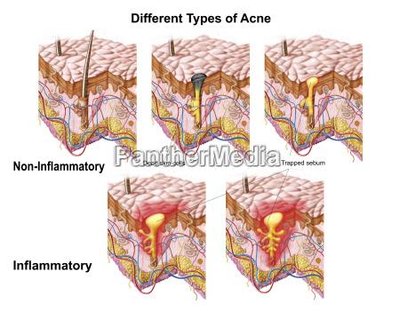 detalhe medico medicina closeup pele horizontalmente