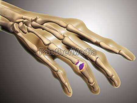 mao dedo medico medicina closeup ciencia