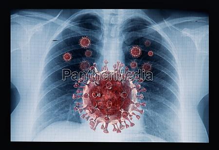 doenca de coronavirus covid 19 infeccao